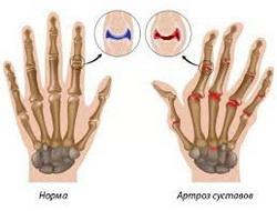 лечение артроза рук