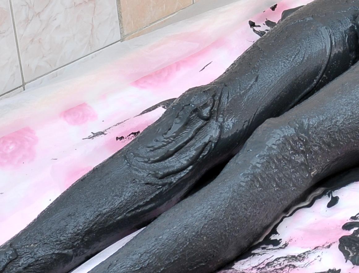 лечение ревматоидного грязями