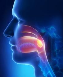 эффективное лечение тонзиллита